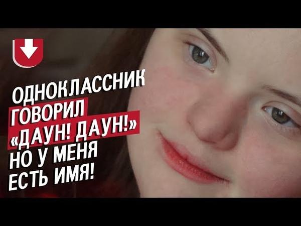 Интервью 19 тилетней девушки с синдромом Дауна