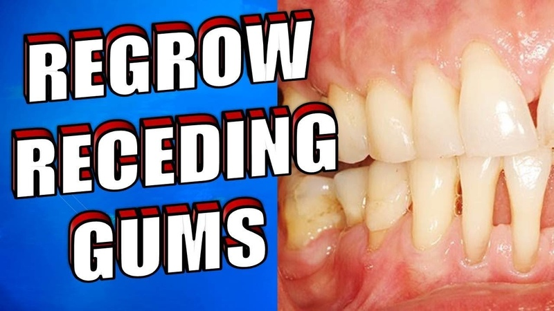 What Causes RECEDING GUMS | How to Reverse RECEDING GUMS Naturally