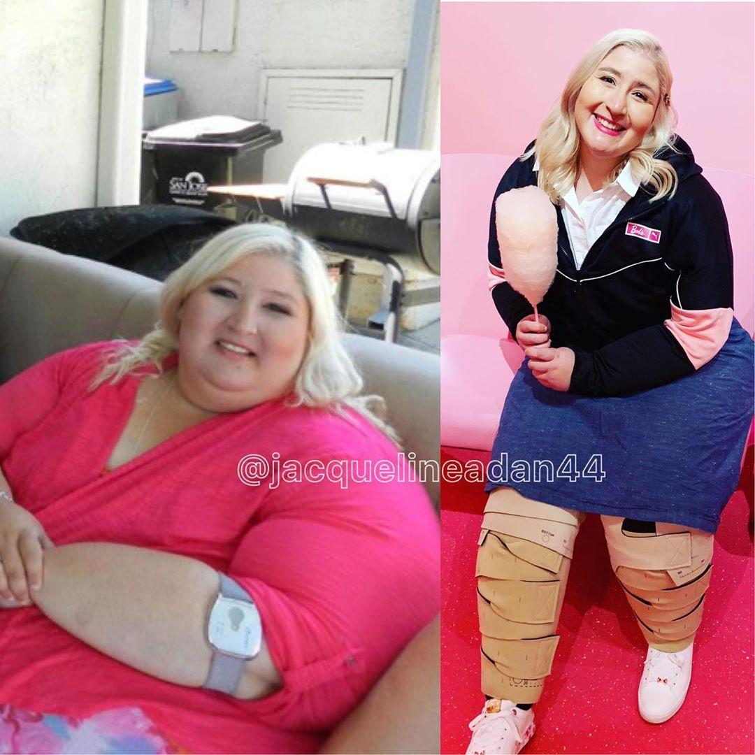 Девушка сбросила 160 килограммов, теперь над ней смеются из-за обвисшей кожи