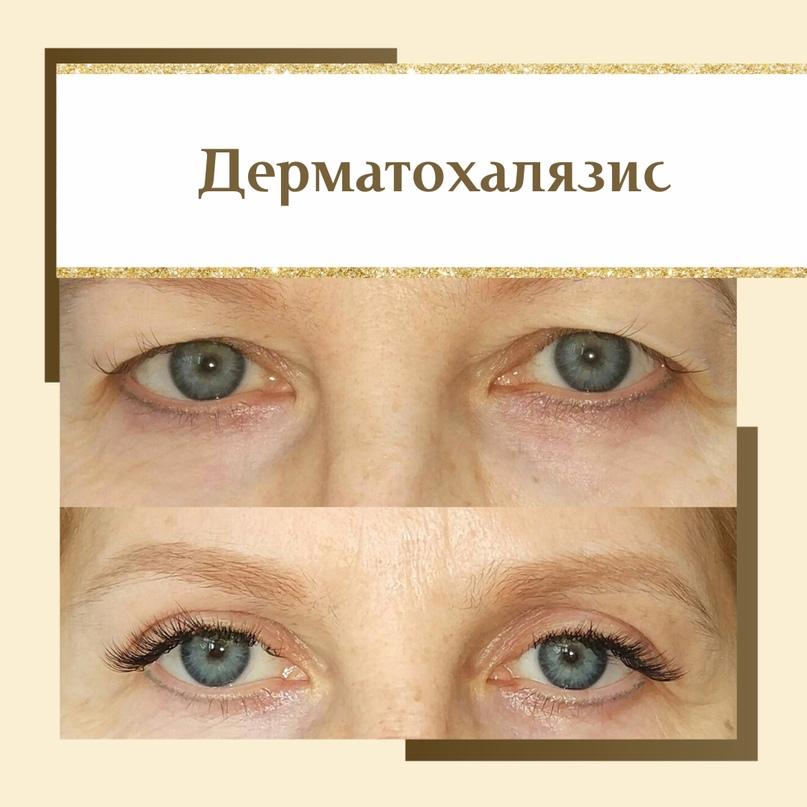 Область глаз. Старение и лечение., изображение №3