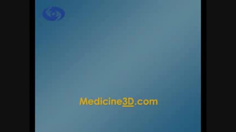 3D анимация из ролика победителя ASCRS 2010